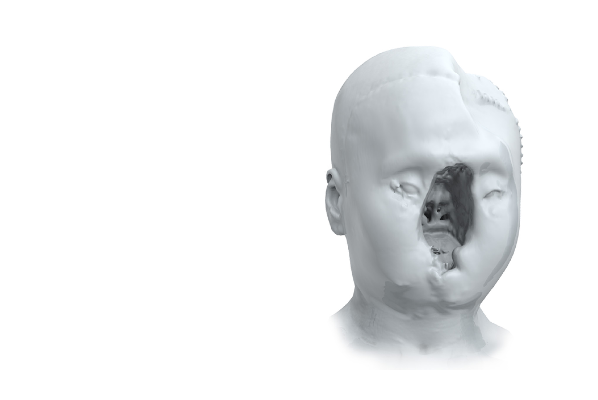 See How Trailblazing Science Fixed A Wounded Face